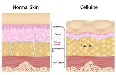 celulite e sem celulite