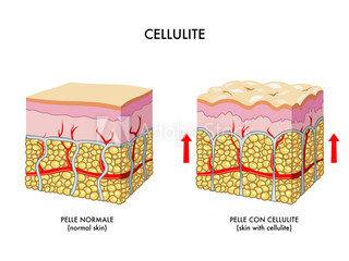 pele normal e com celulite