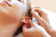 acupuntura 4